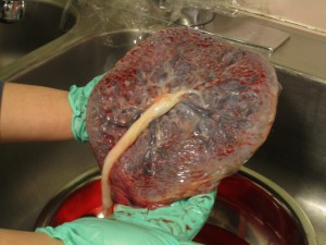 Placenta preparation for encapsulation